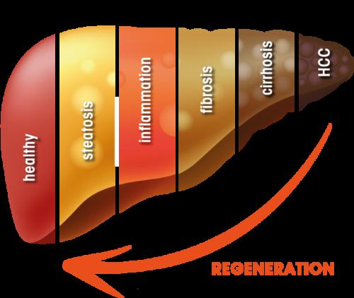 HepaRegeniX GmbH: Development stages of chronic disease